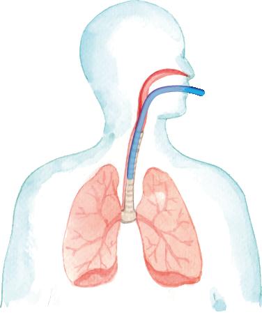 ventilación endo-traqueal