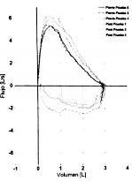 oscilometría de impulso broncodilatador sistema respiratorio