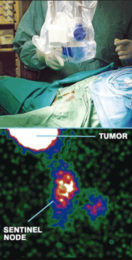 Detección de cáncer